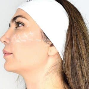 Derma Institute 1 Day cheek engancement training