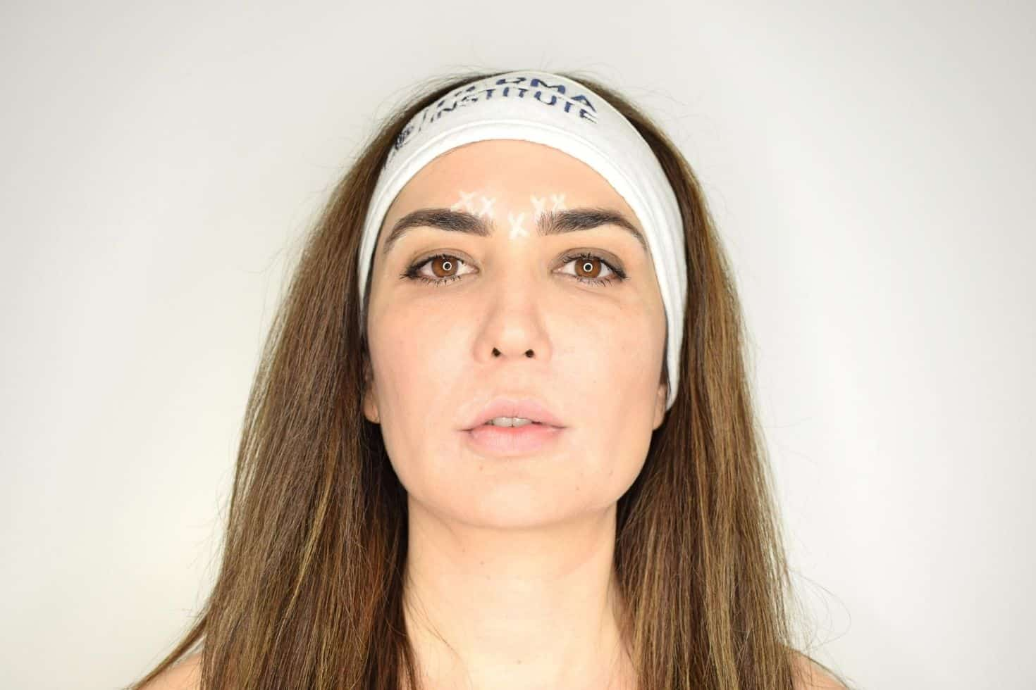 Botox course advantage -FULL-DAY OF LIVE INJECTING